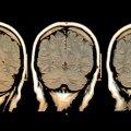 Detectan actividad en cerebros en muerte cerebral