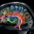 La neurociencia desentraña el pensamiento